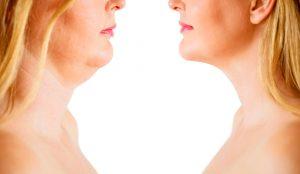 Tratamientos para mejorar el rostro. Cómo lograr la armonía facial
