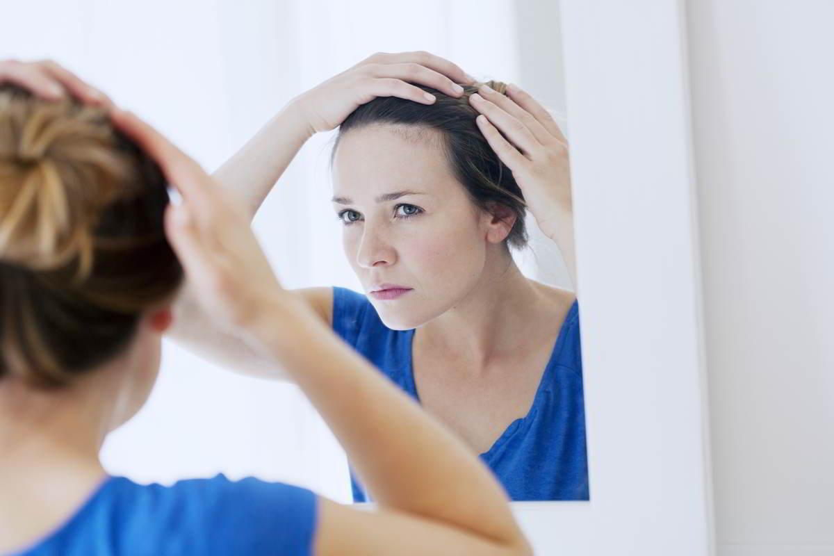 Imagen representativa de una mujer que revisa su cuero cabelludo con psoriasis
