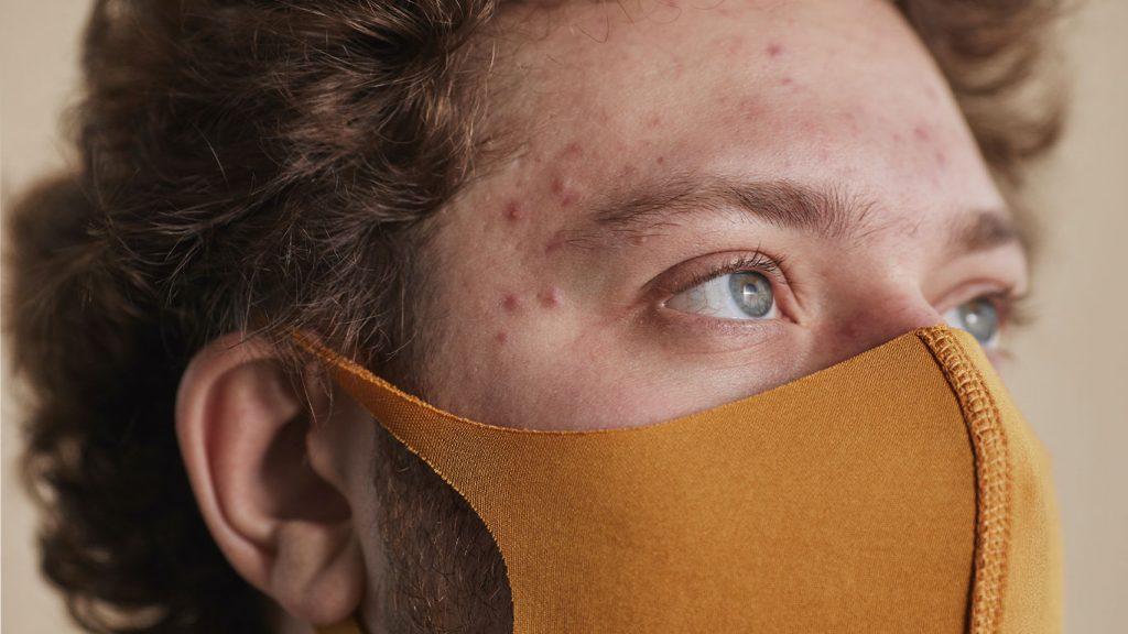Maskacné: un reto para la piel