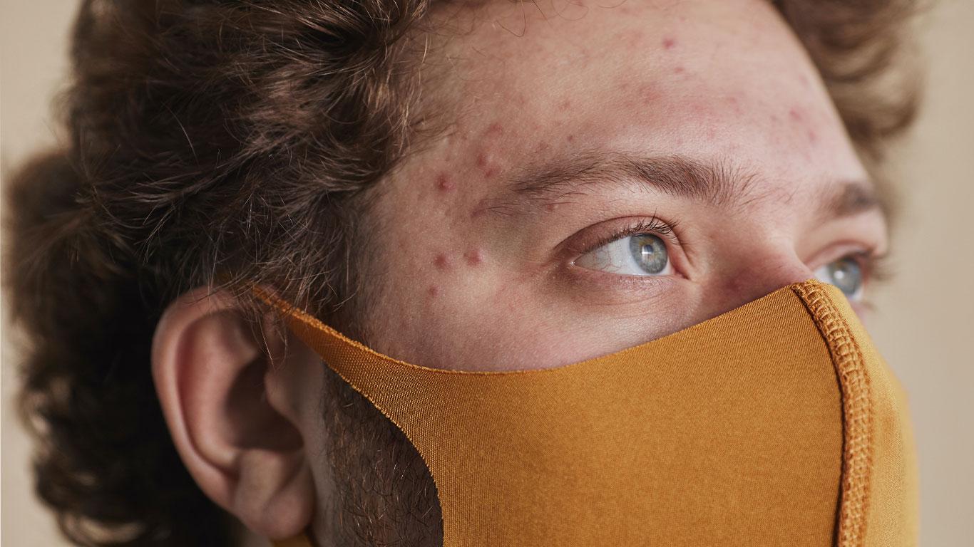 Maskacné: nuevo reto para la piel. Recoletas Palencia